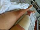 knieoperatie